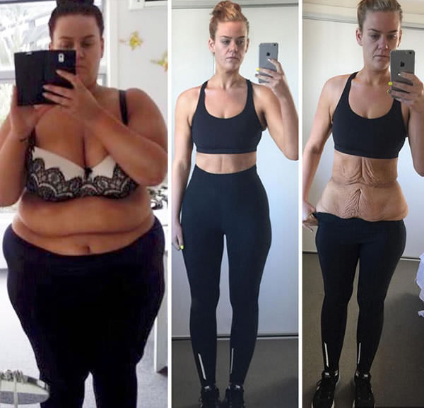 fogyás 10 kg egy hónap alatt)