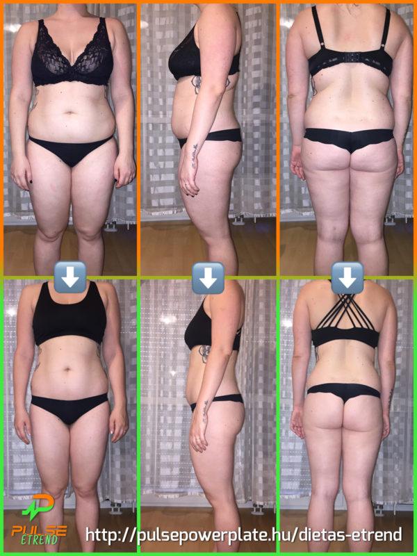 Eredményes testsúlycsökkentés diabéteszben