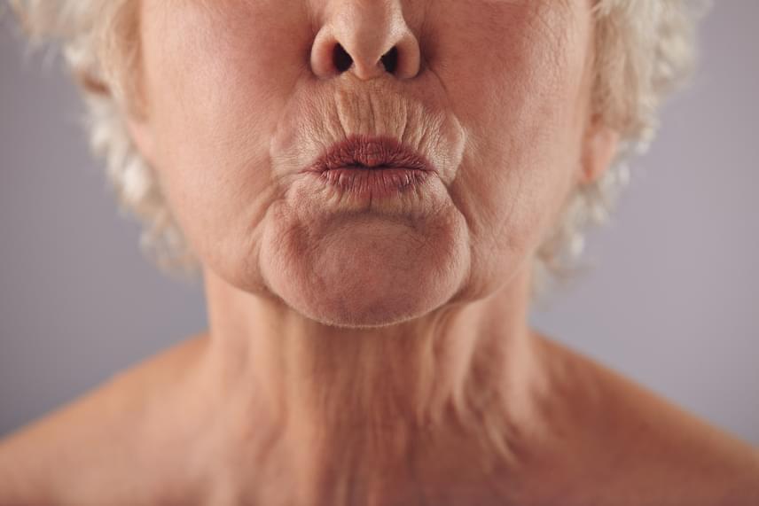 veszít zsírt a száj körül