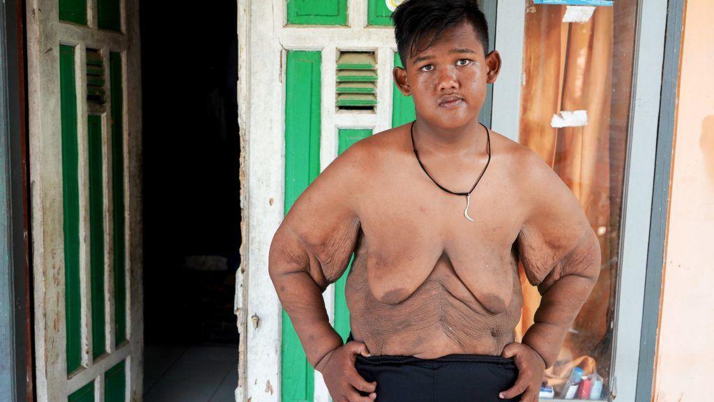 kövér fiúnak le kell fogynia