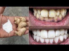 fogyás furcsa íze a szájban