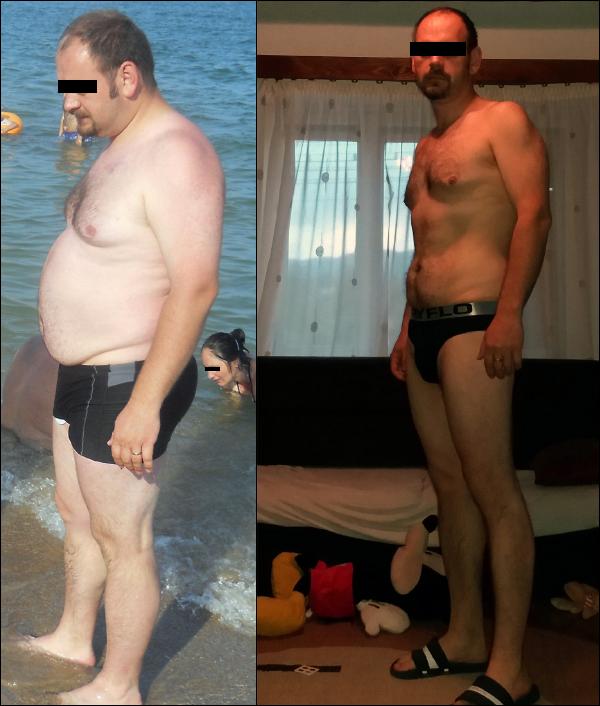 50 kilót fogyott 8 hónap alatt, ez lett a vége
