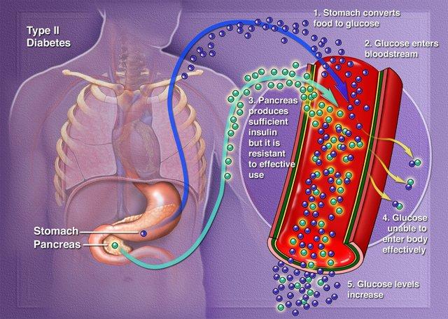 polyuria polyphagia polydipsia fogyás