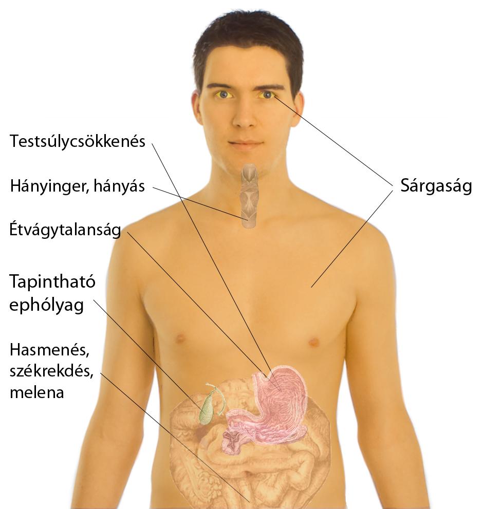 hányás és fogyás tünetei