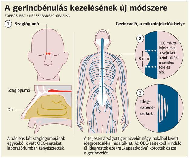 fogyás gerincvelő- sérülés friss 20 fogyás