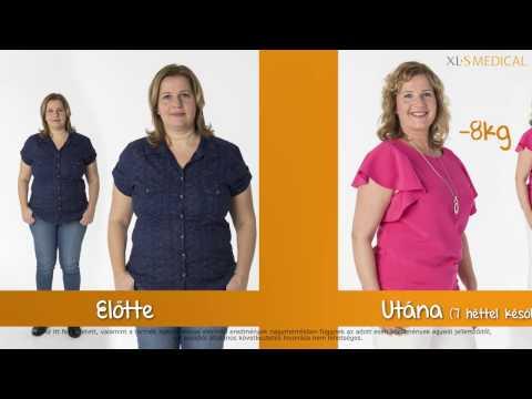 Ugráló kilók kontra sikeres fogyókúra – 3.rész: Fontos részletek a sikerért