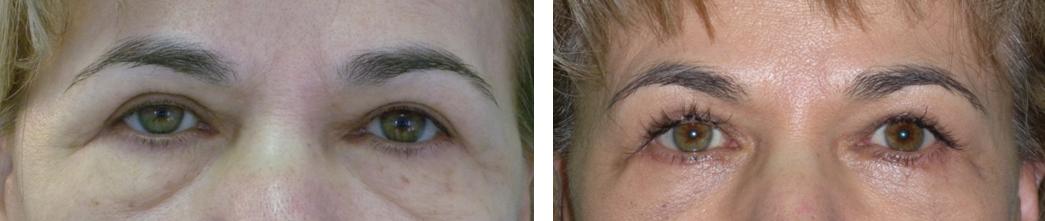 hogyan lehet eltávolítani a szemhéj zsírját