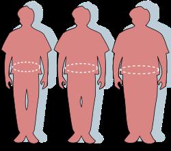 a legjobb fogyás az elhízott ember számára)