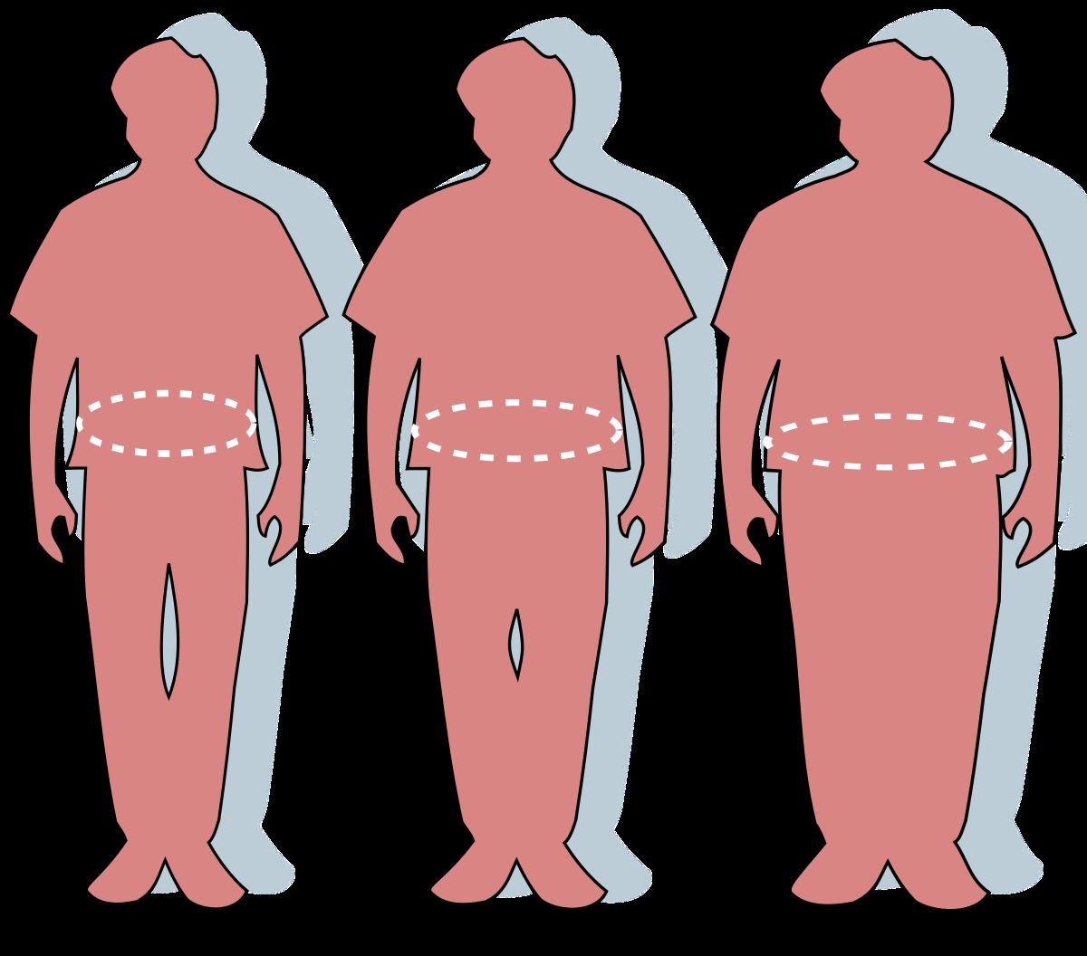 70– 50 kg súlycsökkenés
