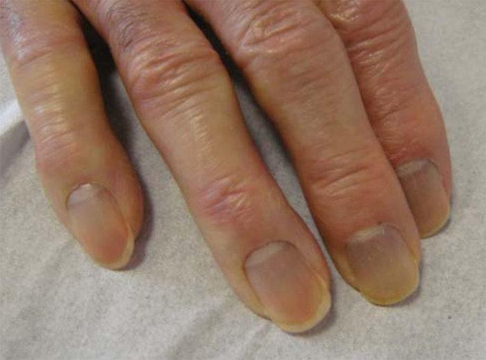 Fehér foltok a körmön - Egészség | Femina