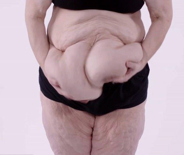 A börtön-tanulmány, amely megváltoztatta a tudósok elhízással kapcsolatos véleményét