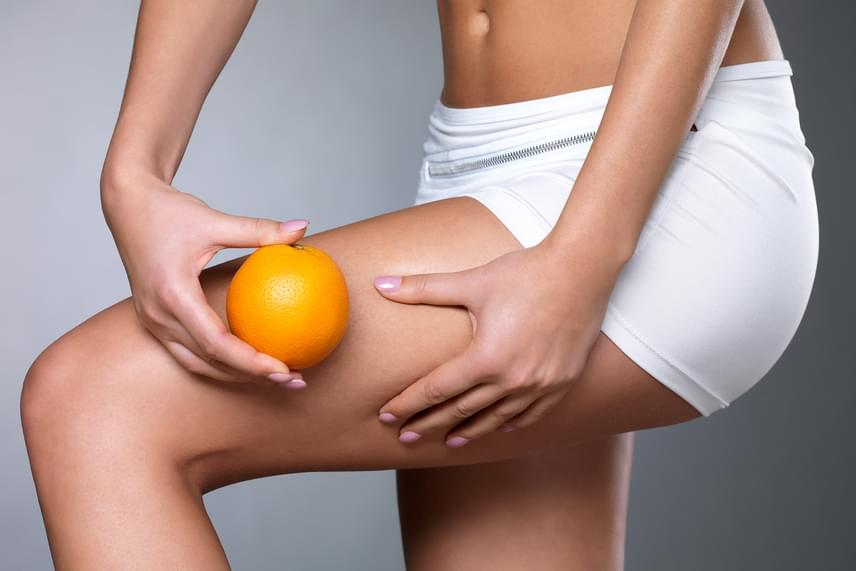 Narancsbőr elleni orvosi tanácsok