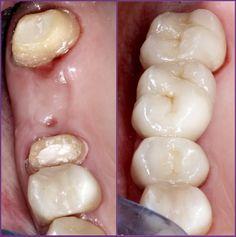 fogyás esettanulmány