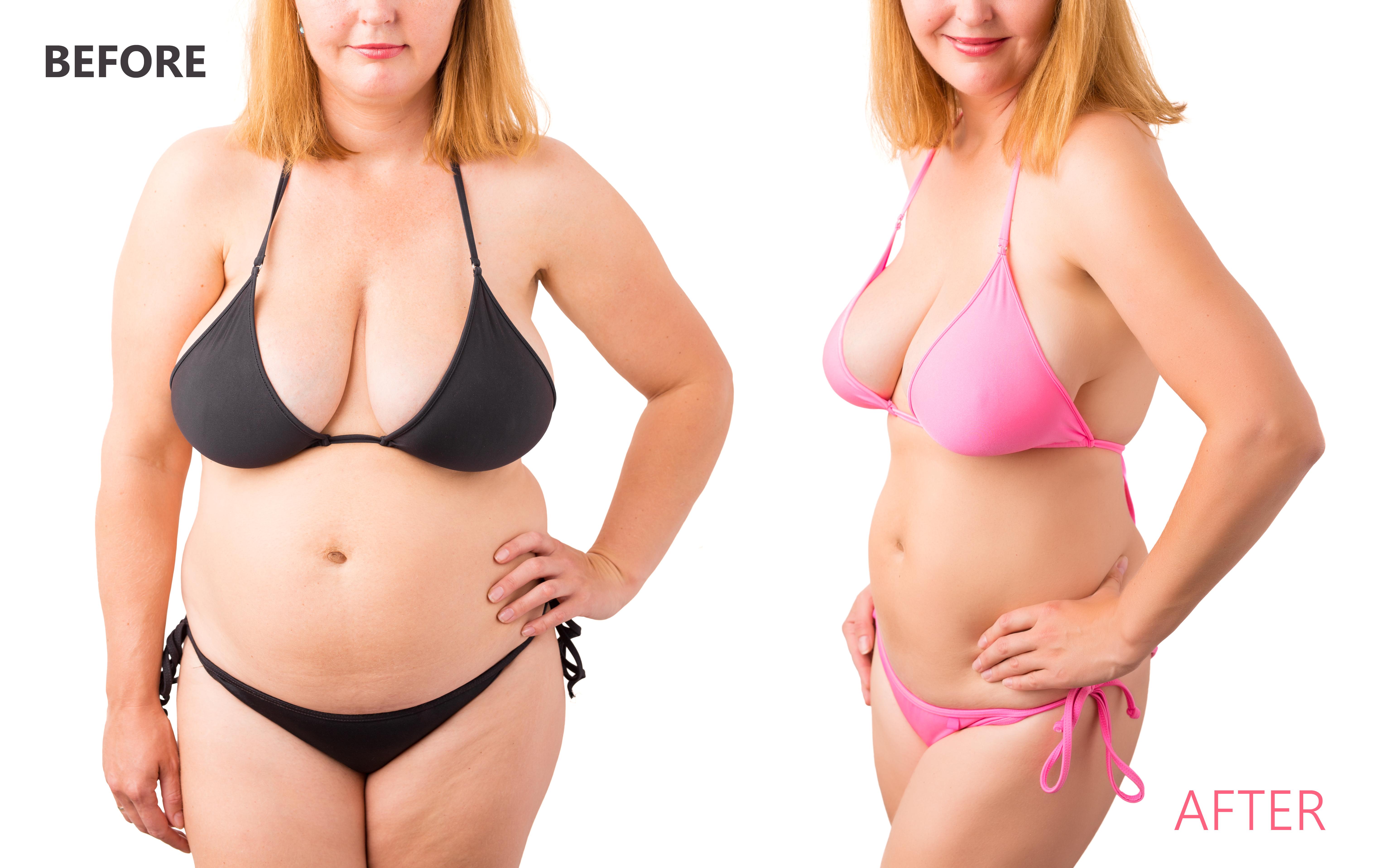 Hogyan lehet 15 kilót fogyni? - Fogyókúra | Femina