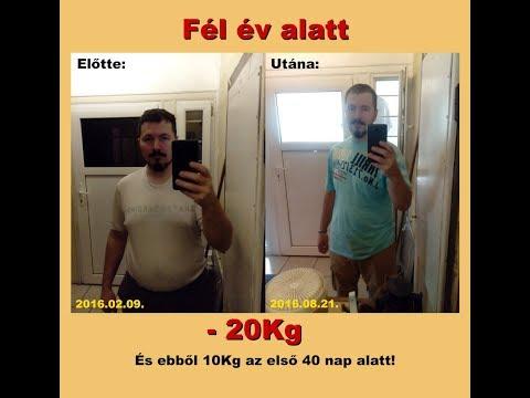 truvision súlycsökkentési történetek