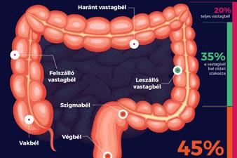 krónikus vékonybél gyulladás tünetei tj ott lefogy