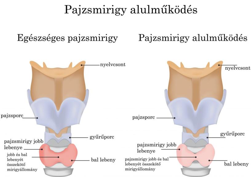 ápolási fogyás)