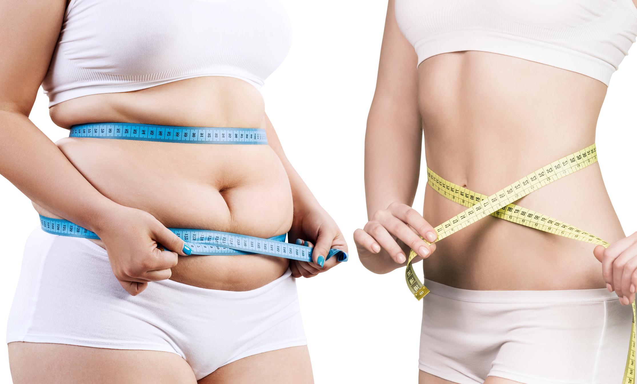 mct zsírt éget hogyan lehet elveszíteni has kövér ember