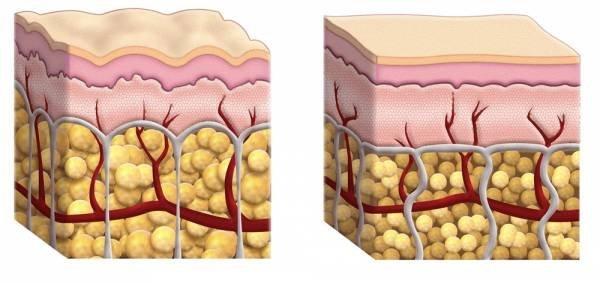 hogyan veszít zsírsejteket