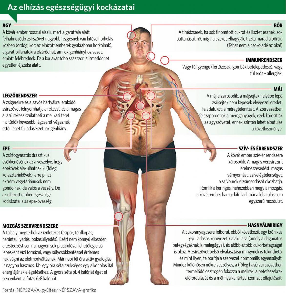 elveszíti a has kövér férfi