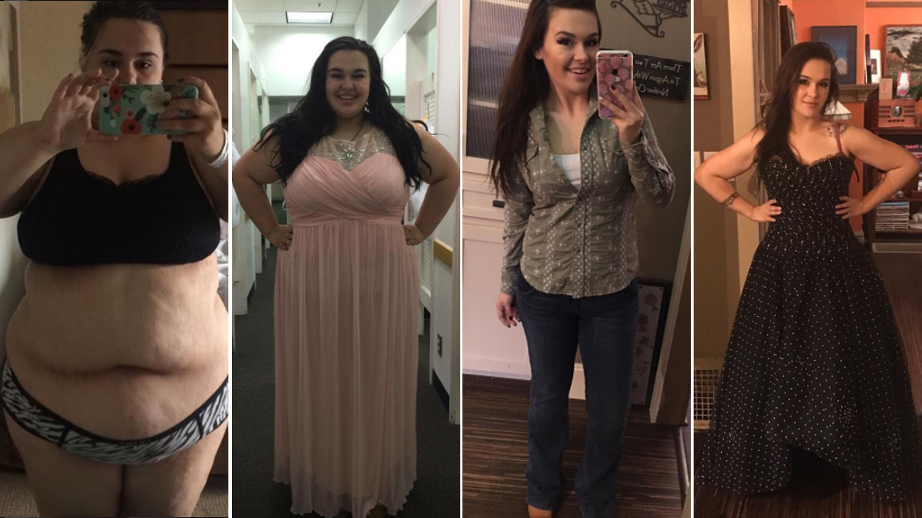 20 kiló fogyás után