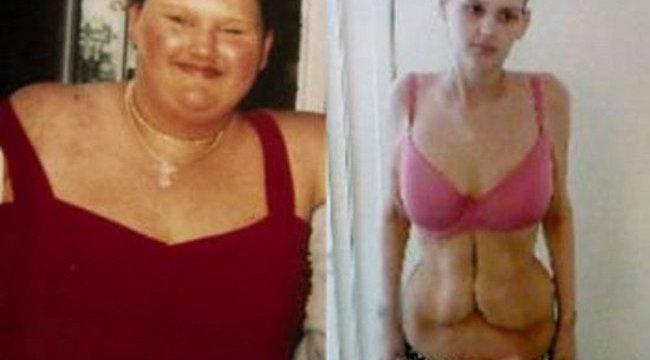 Kövér vagyok, fogyni kell! | Borderline Naplók