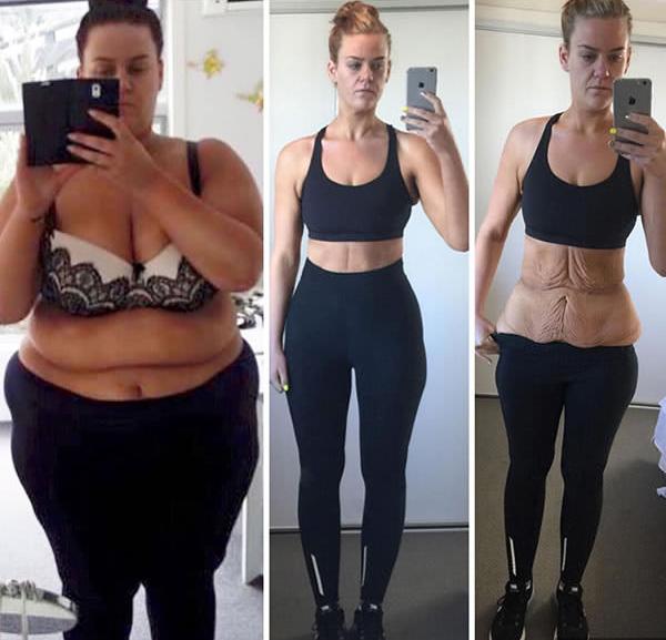 20 kg súlycsökkenés egy hét alatt