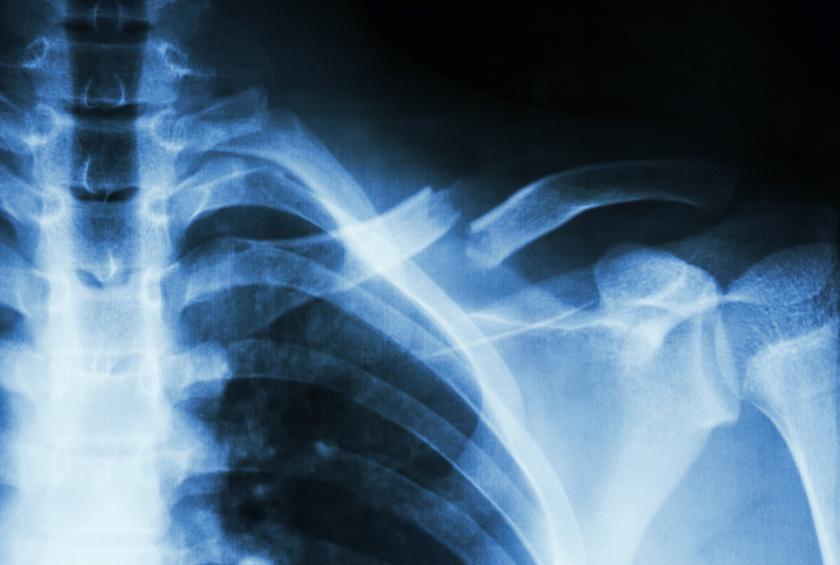 törött csontok és fogyás)
